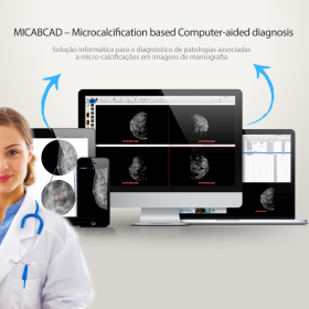 MiCabCad – Microcalcification based Computer Aided